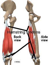 treatment-hamstring-tendinopathy.jpg