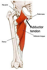 adductor-tendinopathy.jpg