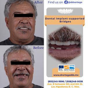 bridge over implants