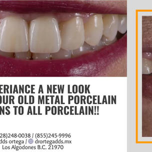 porcelain free of metal