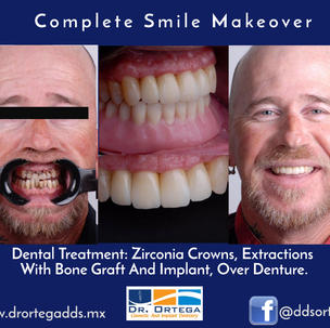 Dentures over implants and crowns