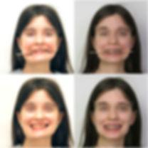 Ортогнатическая операция до и после