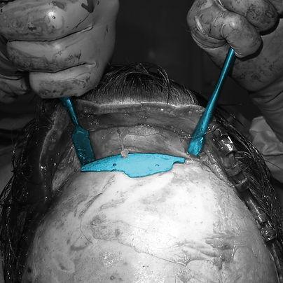 frontoplasty