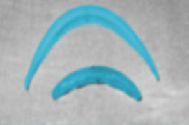 иликоновый имплант подбородка