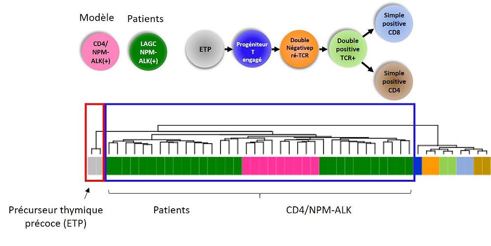 une première mutation va créer un état pré-leucémique généralement sans symptôme clinique (ici mutation dans PAX5) et d'autres mutations (altérations additionnelles) vont faire progresser vers la leucémie.