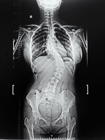 an x-ray of whole spine showing spine of