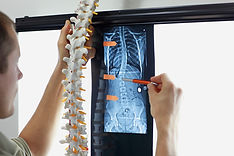 Scoliosis - Specialist with  model  of s