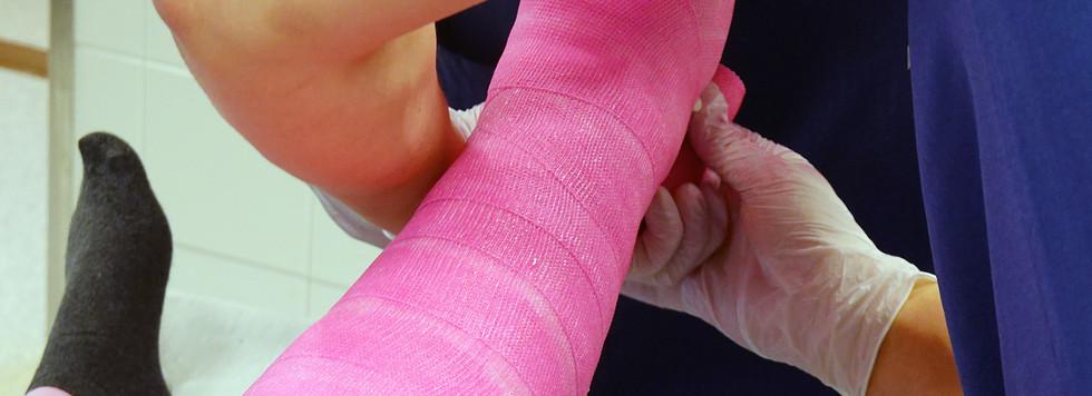 Orthopedic cast. Doctor plastering fract