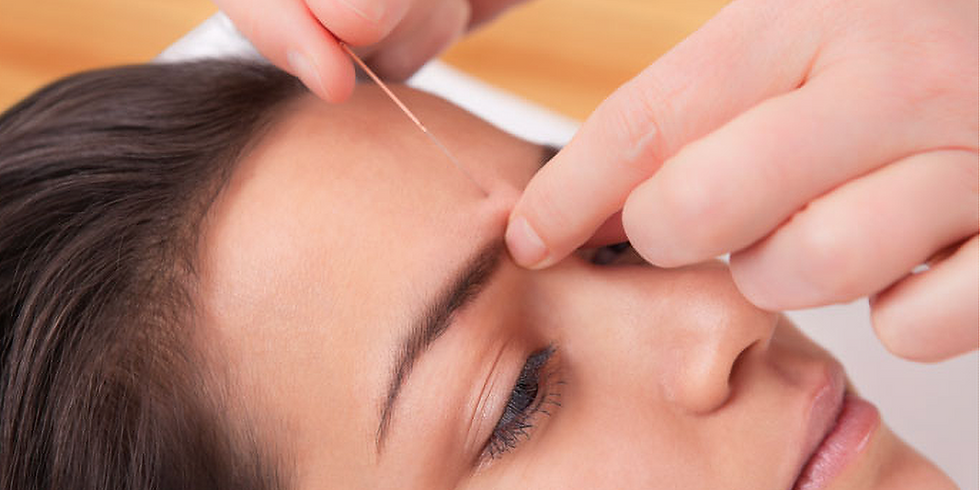 De-Stress from the Holiday Hustle with Acupuncture