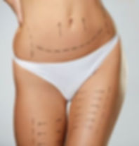 liposuction-recovery.jpg