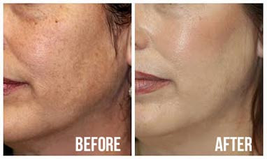 before-and-after-microdermabrasion.jpg