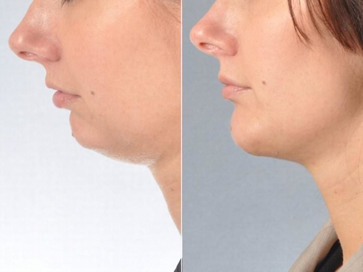 chin-and-cheek-implants-before-after-21-