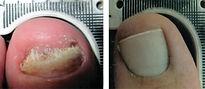 Lunula-Laser-B-A_Patient-034-150.jpg