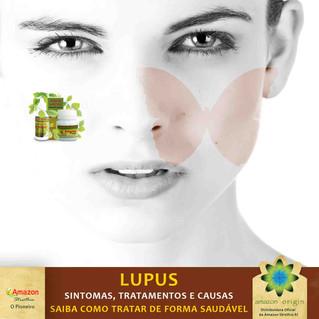 LUPUS. Sintomas, Tratamentos e Causas