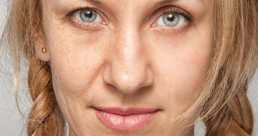 terapia despigmentante