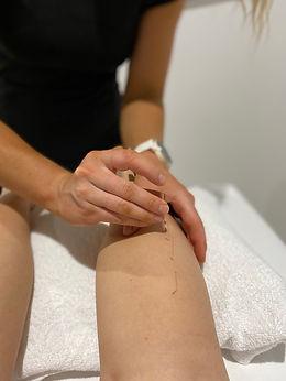 Emily Gray doing dry needling treatment
