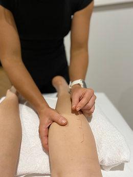 Dry Needling treatment