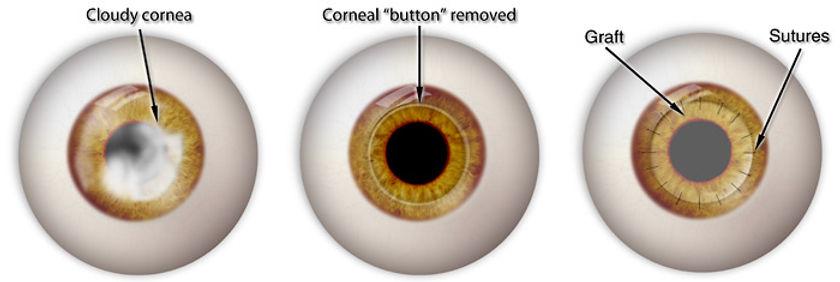 corneal-transplant-pics.jpg