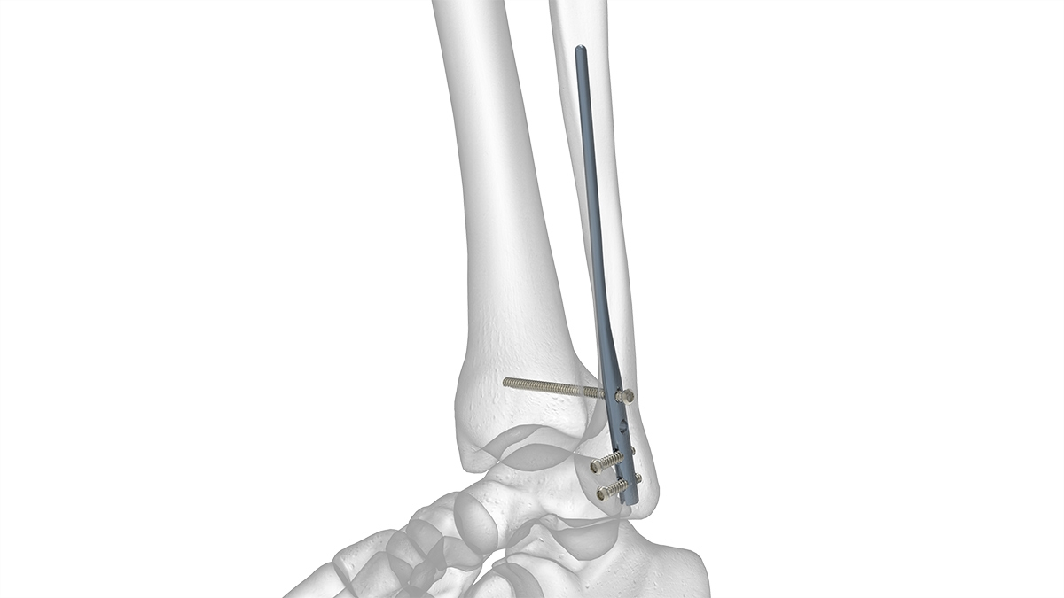 Foot-and-Ankle-Fibula-Rod-System-Solo