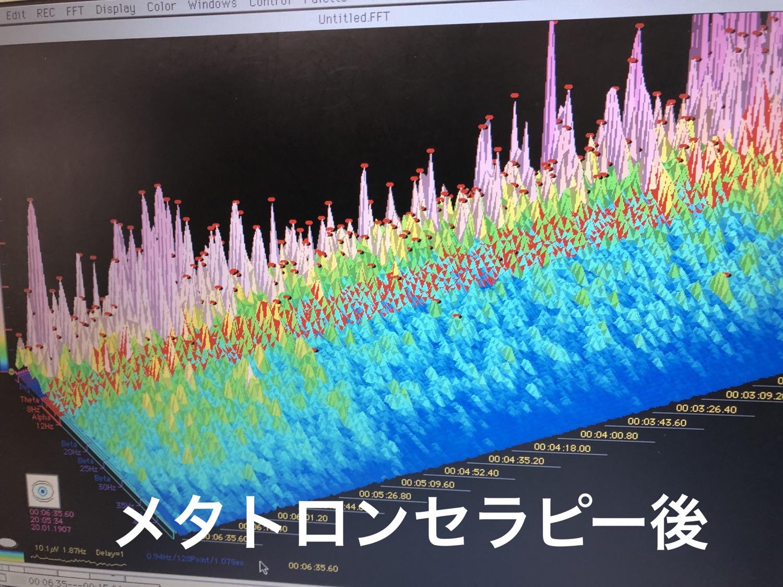 波動量子機器メタトロンの効果実証