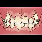 歯並び悪い.png
