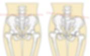 前田はりきゅう整骨院、骨盤の歪みは万病の元、人気メニュ骨盤調整