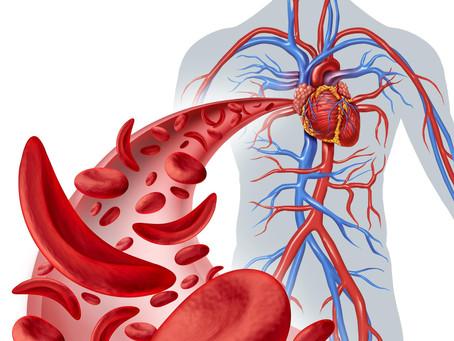 Anemia falciforme: sintomas, tratamentos e causas