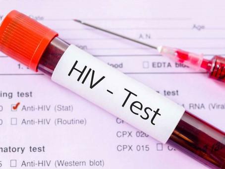 6 pontos importantes sobre HIV que você precisa saber o quanto antes