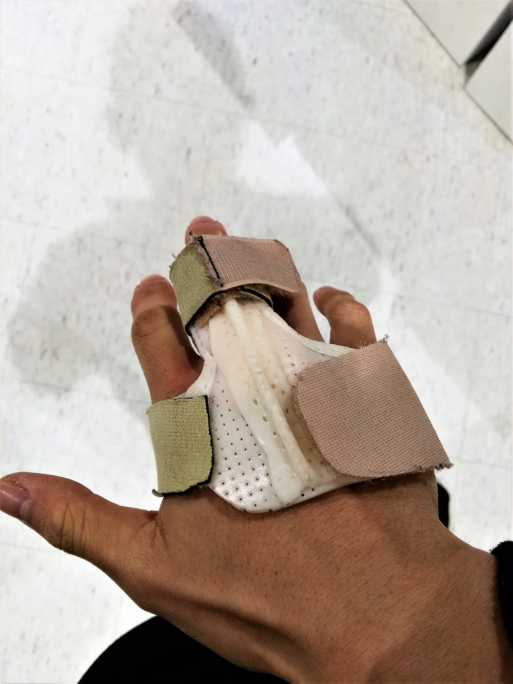 Picture of a hand in a brace