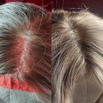 Wig fix for a hair loss client