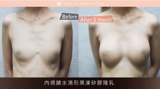 素人03 | 內視鏡水滴形果凍矽膠隆乳