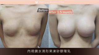 素人05 | 內視鏡水滴形果凍矽膠隆乳
