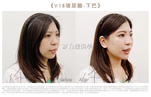 2019.07-V18玻尿酸下巴(芸)01.jpg