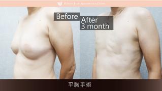 素人01 | 平胸手術