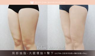 素人03 | 大腿環抽+臀下