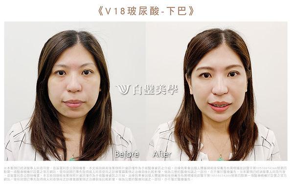 2019.07-V18玻尿酸下巴(芸).jpg