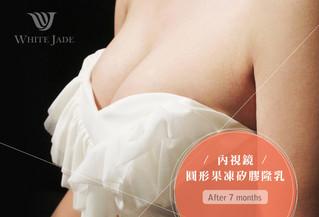 素人04 | 內視鏡圓形果凍矽膠隆乳