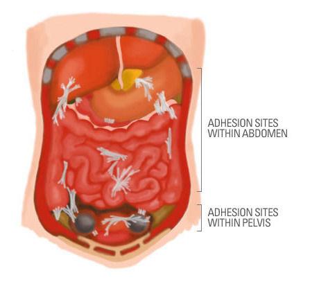 cesarean-scar-adhesions-i13.jpg