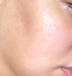 """Shereen's Skin Transformation """"After"""""""