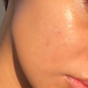 "Yasmeen's Skin Transformation ""After"""