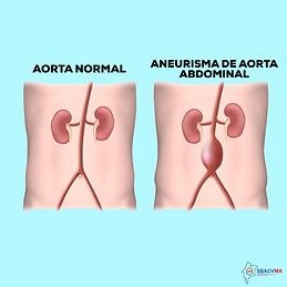 AneurismaAorta abdominal- SITE .png