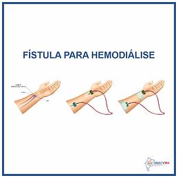 FISTURA-PARA-HEMODIALISE.png