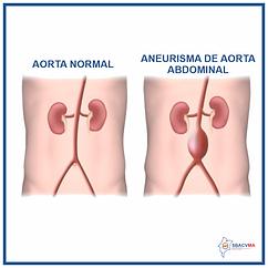 AneurismaAorta_abdominal.png