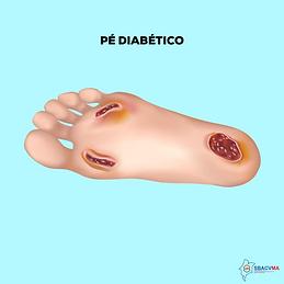 PÉ DIABÉTICO- site  .png