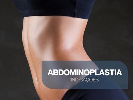 Abdominoplastia é indicada para você?
