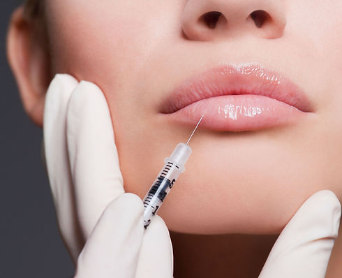LIP FILLERS WEST MIDLANDS | BOTOX WEST MIDLANDS | BEAUTOXOLOGY.jpg