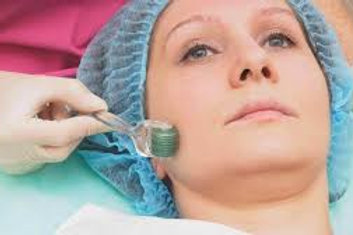 Microneedling incl. neck