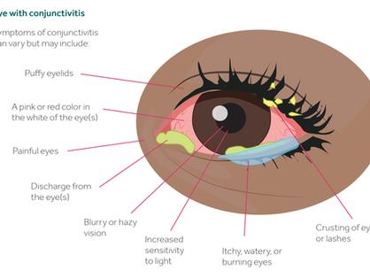 Conjunctivitis or Pink Eye