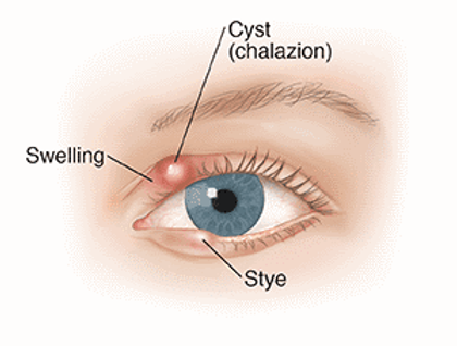 Difference between Chalazions & Styes
