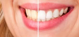 BriteWhite Pro Teeth Brightening